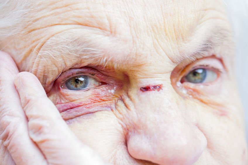 Elder Abuse Attorneys in Los Angeles